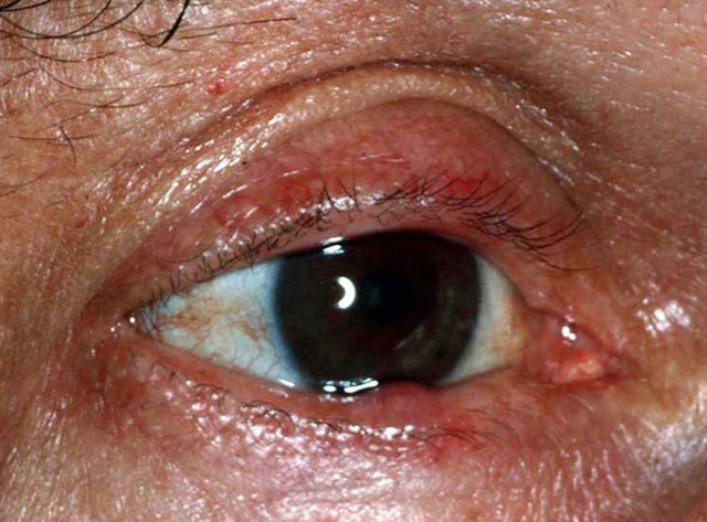 Ocular Rosacea (Rosacea of the Eye) - Verywell