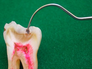 Corte de un molar inferior