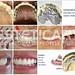 laboratorio_de_protese_dentaria_cad_cam-961