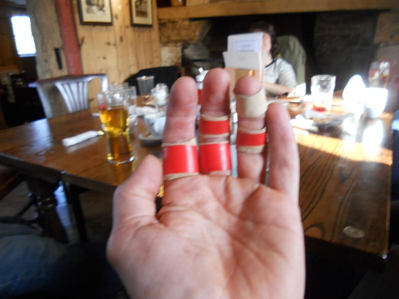 DSCN2462-w-taped-hands