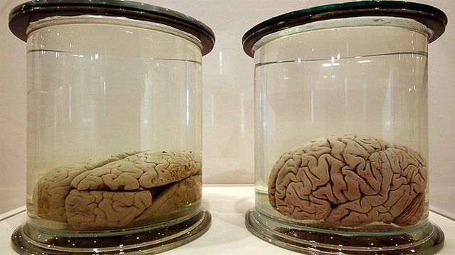Brains Exhibition at the Wellcome Collection