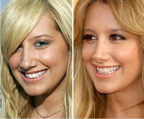 Ashley-Tisdale-operación-de-nariz