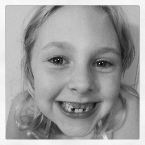 look who lost another tooth!