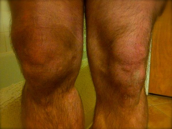 Bad knee - April 24, 2012