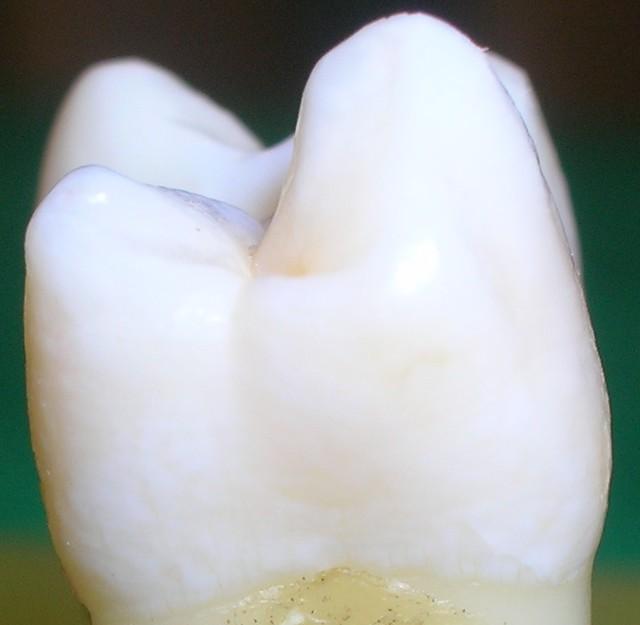 Cara interproximal de una muela joven, sana, limpia, blanca, bonita, con curvas