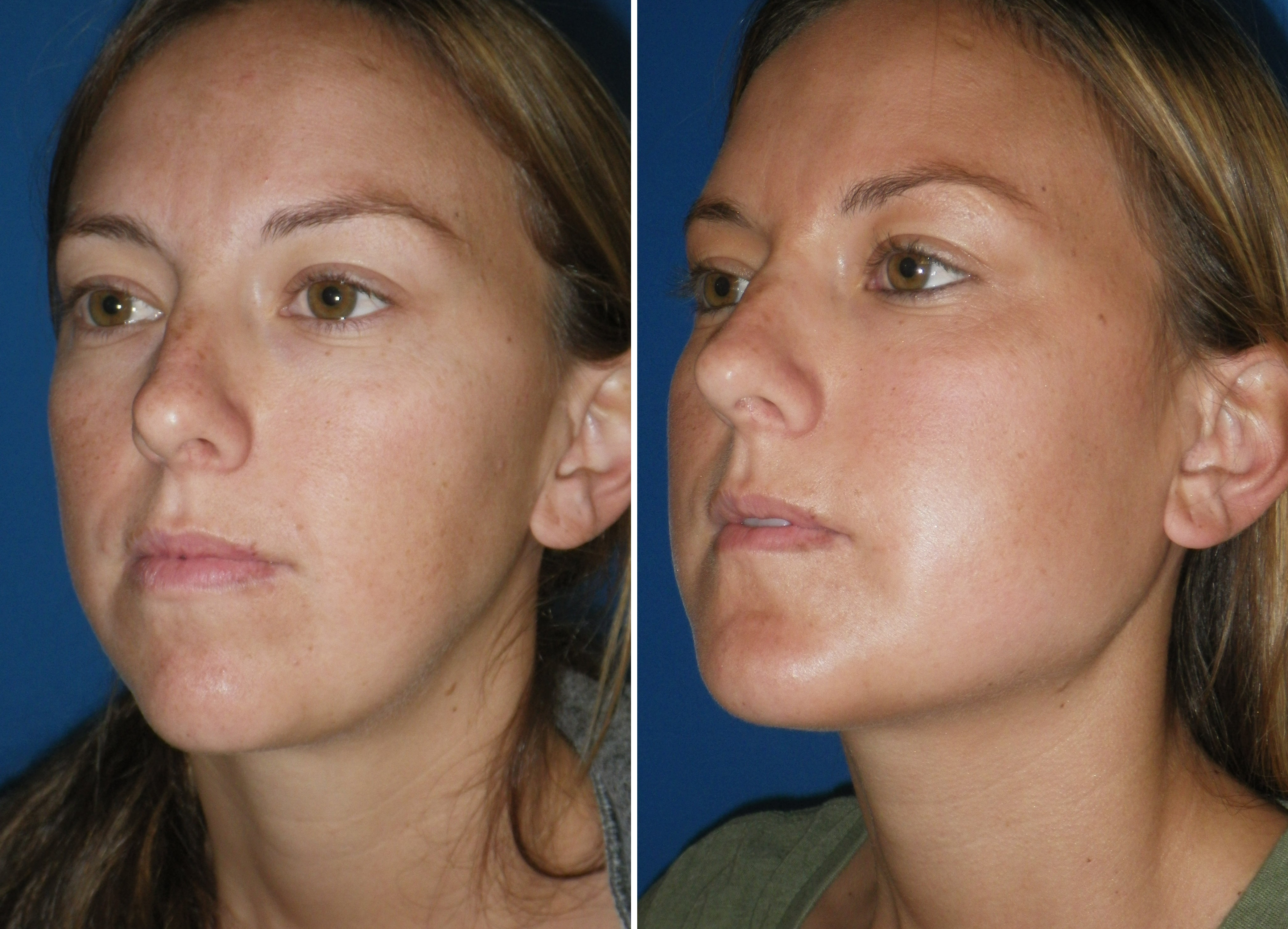 Mandible Implants Before And After