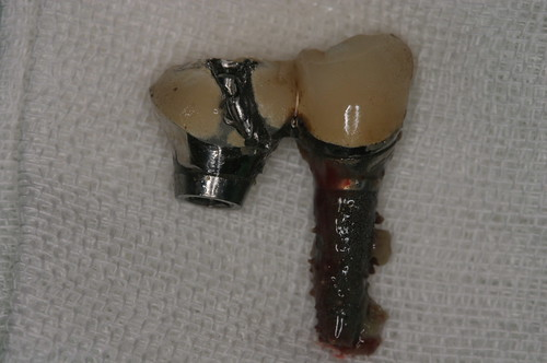 牙醫:黃經理牙醫診所 被拔掉的假牙