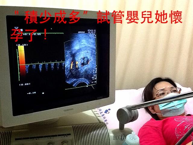 積少成功(零存整付)試管嬰兒成功案例~4