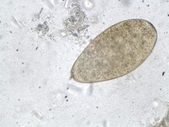 Fasciola hepatica x 400mag