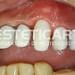 laboratorio_de_protese_dentaria_cad_cam-550