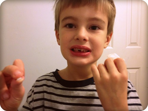 Guess who finally lost his first tooth? by Joe Jon!