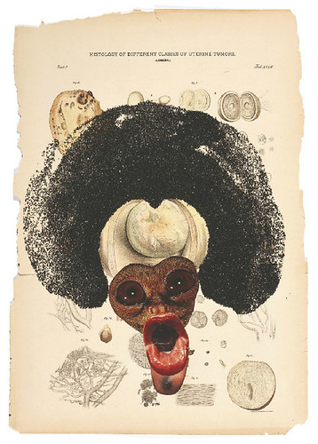 [ M ] Wangechi Mutu - Histology of the Different Classes of Uterine Tummors (2004) - Detail (n42) by Cea.