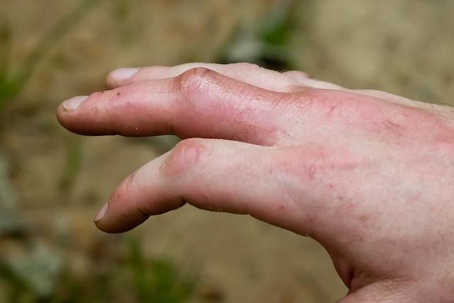 Red-headed Centipede (Scolopendra heros) Bite