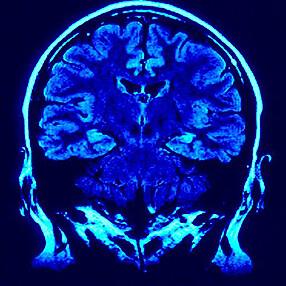 cuidadoalzheimer_la-resistencia-de-las-neuronas