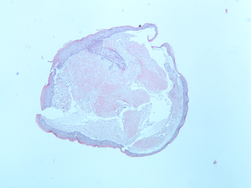 pathology outlines vocal cord polyp