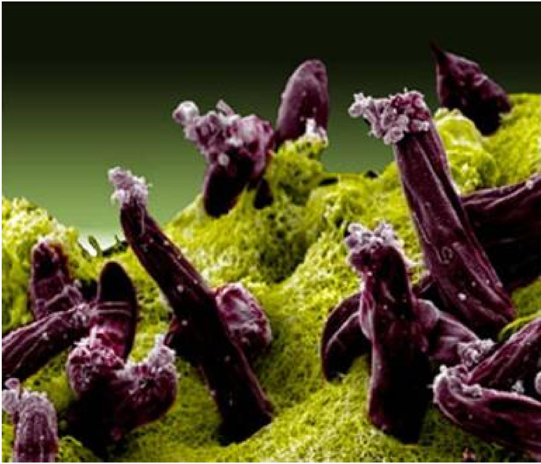 Malaria: Plasmodium gallinaceum