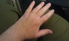 Swollen hand by kehkat