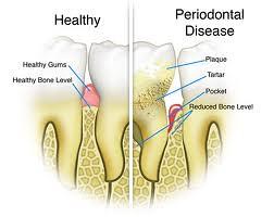 Healthy Gums vs. Periodontal Disease