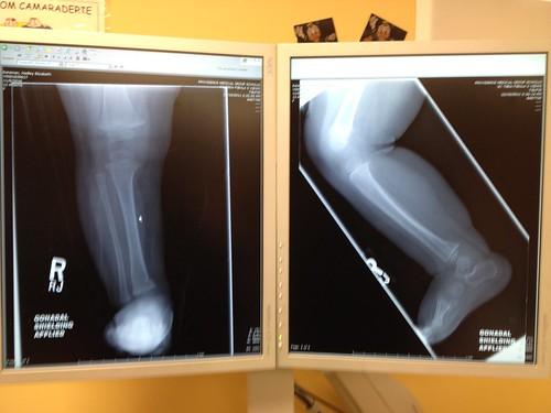 Hadley's X-rays
