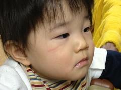 目の下をちょっとひっかいたかな(2011/12/21)