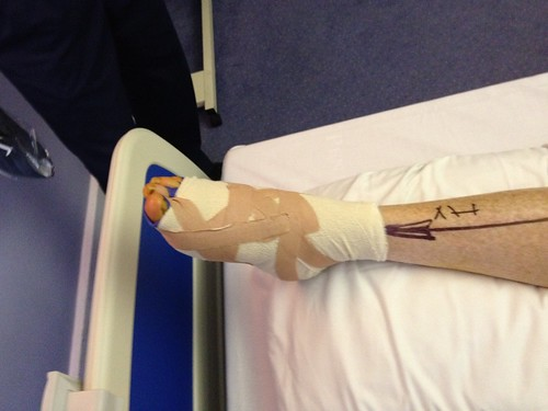 Mary's leg after operation