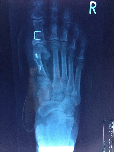 Bunion x-ray after - top view