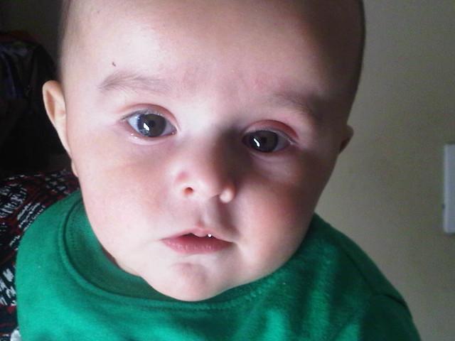 Oliver, Closeup