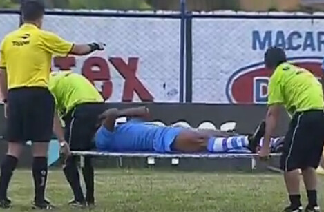 Stretcher FAIL: The Bum Note (Internacional   Confianca)