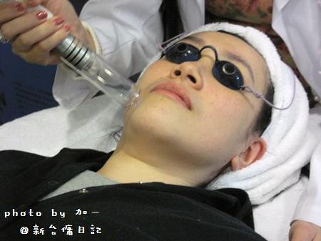 部落客加一x新竹悠美-年前進廠保養C9柔膚雷射搭配脈衝光淡斑