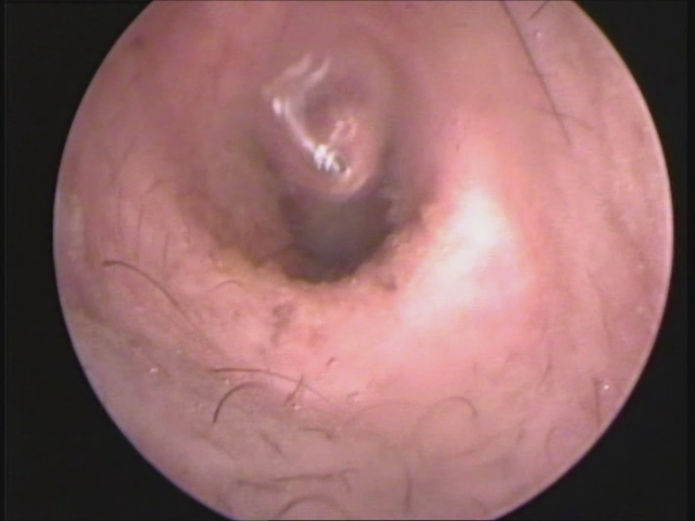 Ruptured Tympanic Membrane 14 days later | Flickr - Photo ...