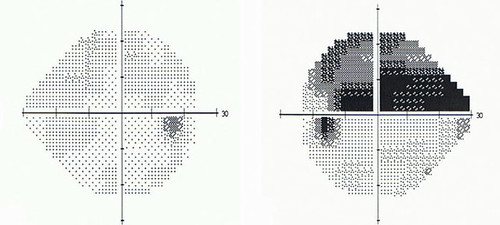El oftalmólogo determinara la presión ocular y el aspecto del nervio óptico. Para ello, se recomienda realizar diferentes pruebas, entre ellas la campimetría