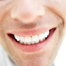Dental Implants Torrance-Torrance Cosmetic Dentist
