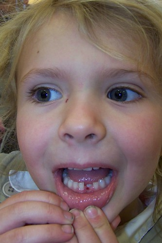 Q5 missing tooth