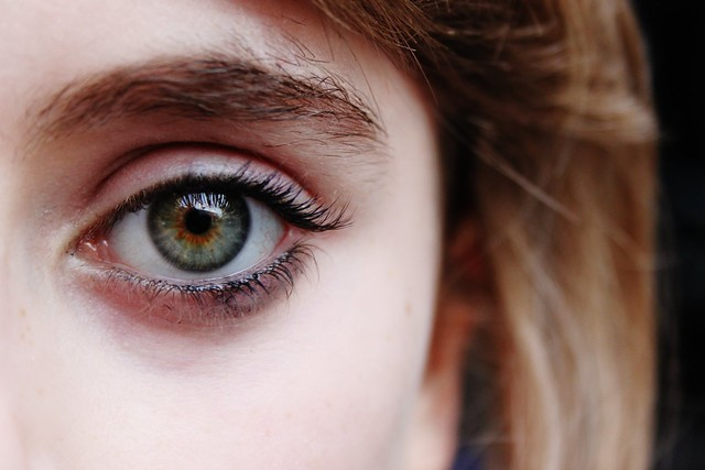 Central Heterochromia ...