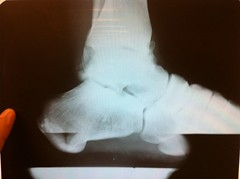 x-ray of my ankle