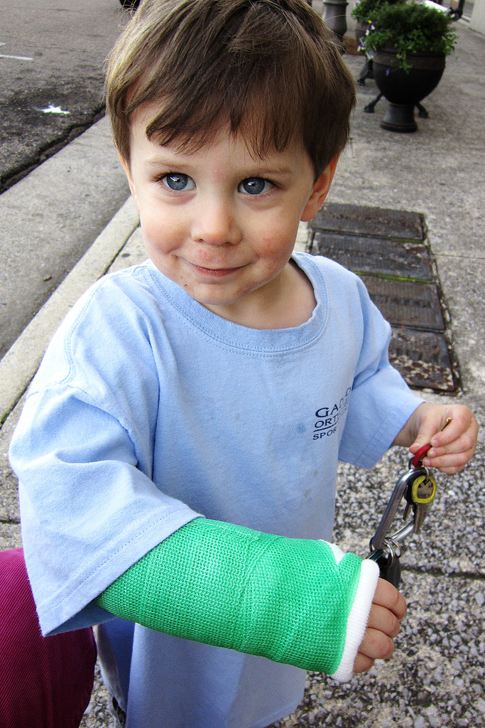 Cash and his green arm