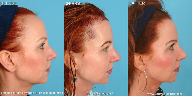 how to get a smaller forehead without surgery