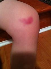 Zack's Bruise Cream