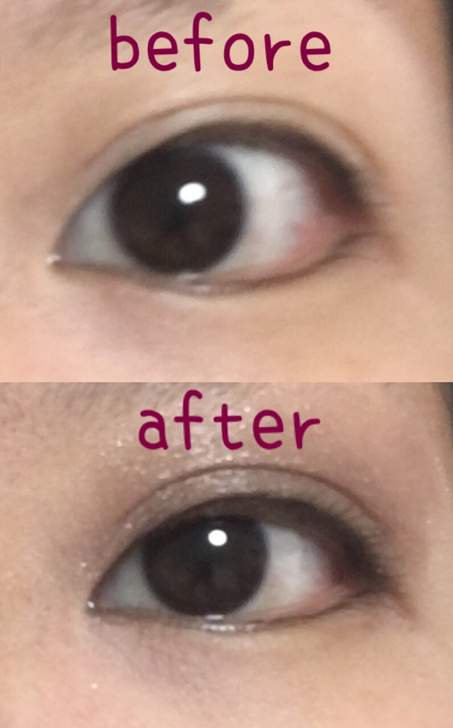 eye-beforeafter