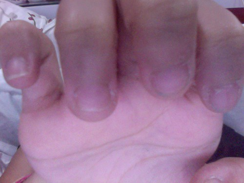 Uneven Nail Growth#*^