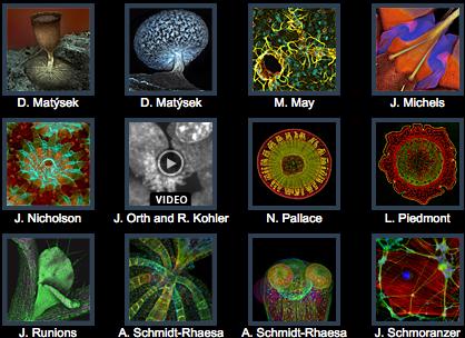 Micrografía. Menciones de Honor Olympus BioScapes 2011.