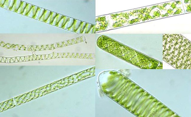 Spirogyra Under Microscope Labeled Spirogyra Under Microscope