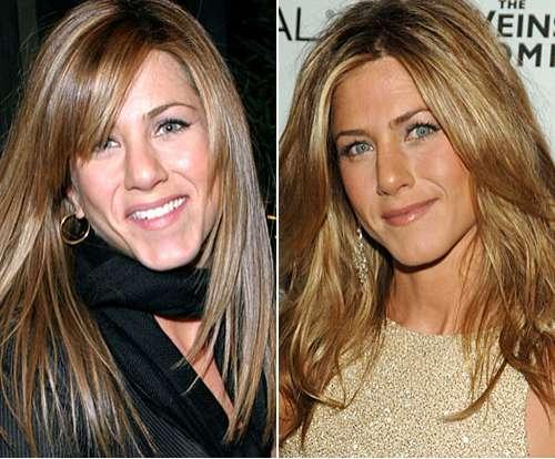 Jennifer-Aniston-operación-de-nariz