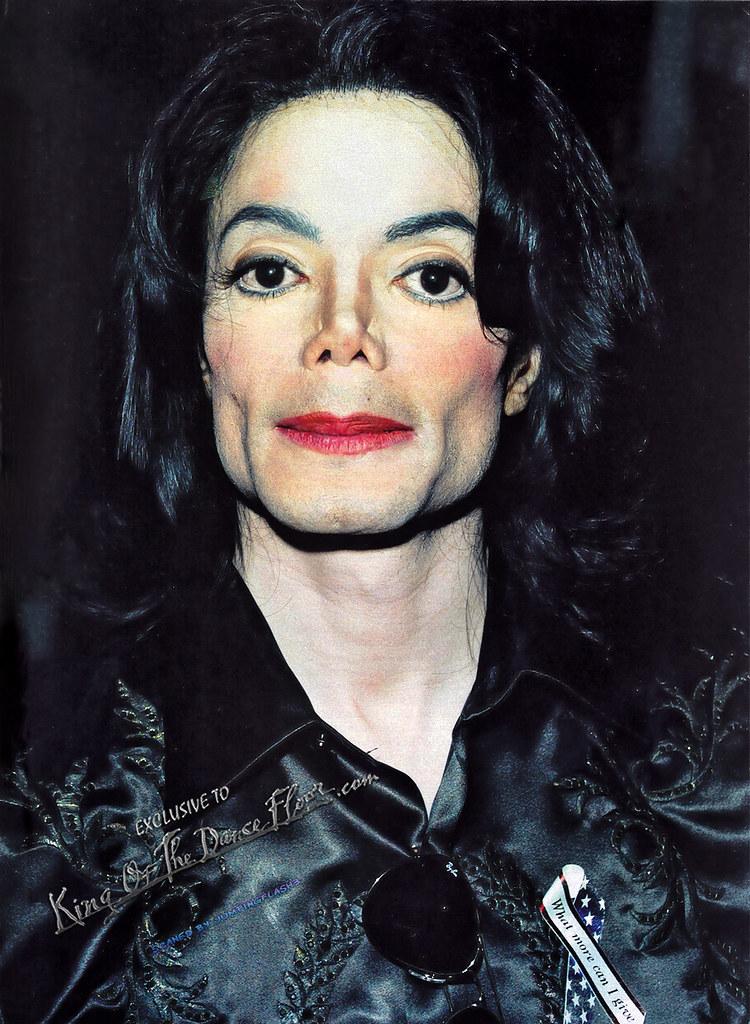 Фото | Майкл Джексон витилиго
