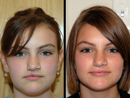 cleft lip repair