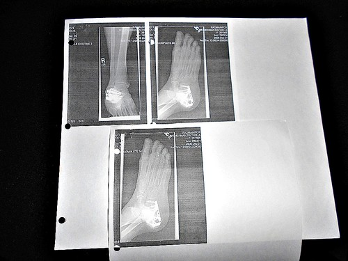 x-ray showing internal fixation of right calcaneus fracture