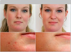 Microdermabrasion before and after acne scars pictures
