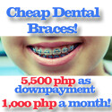 cheap dental braces philippines