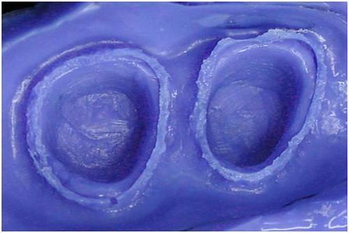 台中豐美牙醫診所-製作牙齒精細表現6