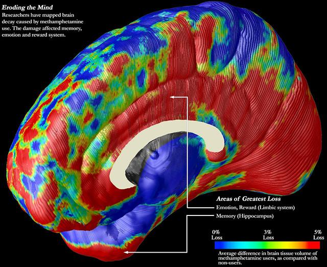 Brain_fMRI_Methamphetamines_01_40%